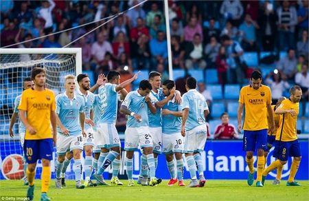 Celta Vigo – Real Madrid: Giai ma ngua o (21h00, K+PM) - Anh 2