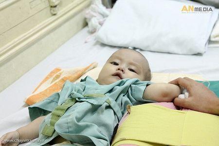 Cong ty Tam Hieu se chia noi dau voi cac em nho tai Vien Tim Ha Noi - Anh 2