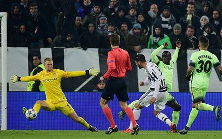 Guc nga truoc Juventus, Man City nhan them tin buon tu Joe Hart - Anh 1