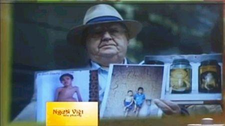 Len Aldis - Nha dau tranh vi nan nhan da cam Viet Nam qua doi - Anh 1