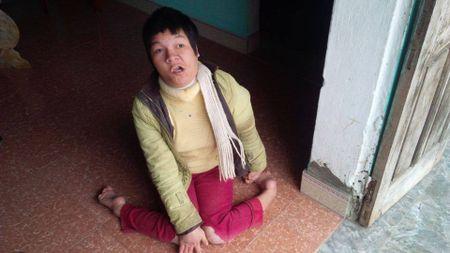 Gia canh thuong tam cua cuu chien binh nhiem chat doc da cam - Anh 2