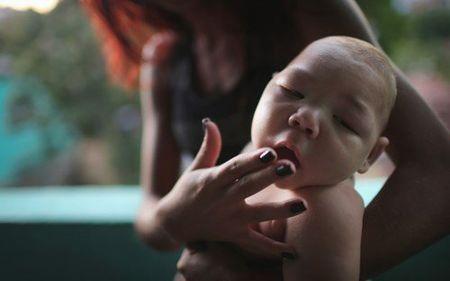 Virus Zika gay teo nao tien sat Viet Nam - Anh 2