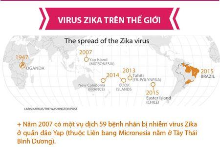 Nhung dieu nguoi Viet phai biet ve virus 'an nao' Zika - Anh 2