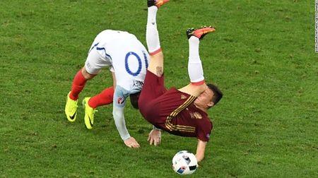 """Cuoc chien"" tren san co Euro 2016 qua anh - Anh 7"
