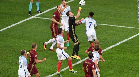"""Cuoc chien"" tren san co Euro 2016 qua anh - Anh 8"