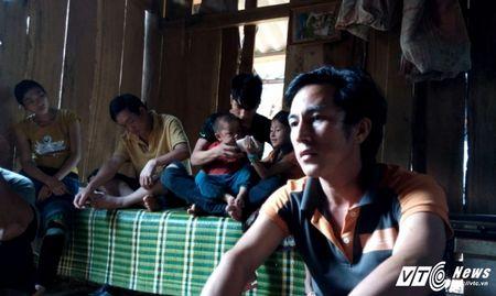 Chuyen ky la noi nhin dau cung thay vang: Chet mon trong cai doi va thuoc phien - Anh 2