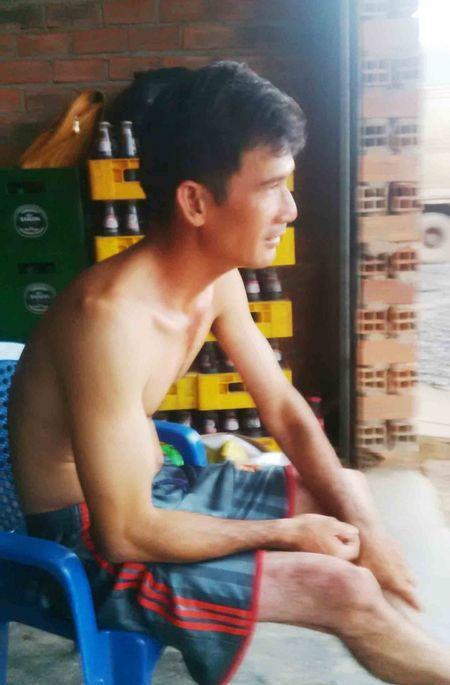 Truot chan te nga, cay nuoc da dap trung dau gay ton thuong nao - Anh 1