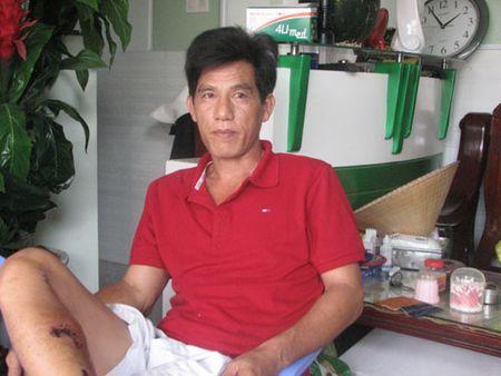 Trieu tap chu xe khach duoc cuu tren Deo Bao Loc de dieu tra - Anh 1