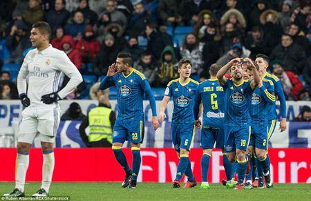 Zidane: 'Ca doi rat buc minh nhung chung toi se vuot qua duoc' - Anh 1