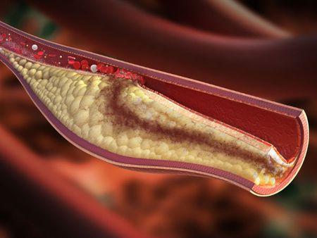 Lieu phap don gian giup giam cholesterol - Anh 1