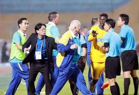 Su yeu kem cua V-League - Anh 1