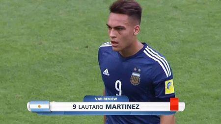 Cau thu tung bi gay mui o My Dinh nhan the do vi 'danh nguoi' khien U20 Argentina thua tran - Anh 2