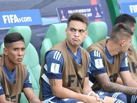 Cau thu tung bi gay mui o My Dinh nhan the do vi 'danh nguoi' khien U20 Argentina thua tran - Anh 3