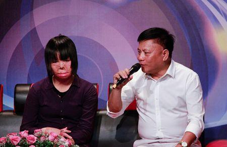 Co gai tung la hoa khoi xom bi chong tuoi xang dot ke ve khat khao song - Anh 3