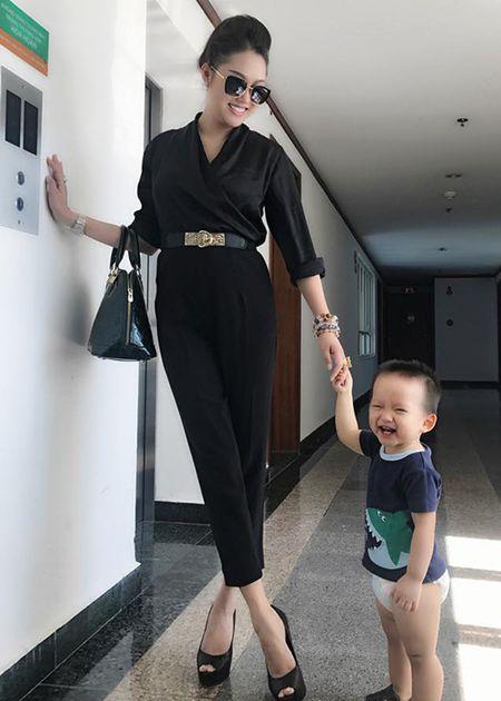 Phi Thanh Van lo dien sau 21 tieng phau thuat tham my - Anh 10