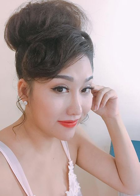 Phi Thanh Van lo dien sau 21 tieng phau thuat tham my - Anh 9