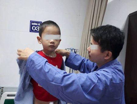 Vu 80 be trai bi sui mao ga sau khi cat bao quy dau: Cha me dan vat vi nghe theo loi truyen mieng - Anh 2