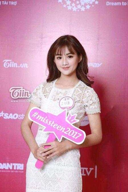 Co gai 'bup be' trong top 100 Miss Teen: So huu 25 huan chuong karatedo - Anh 4