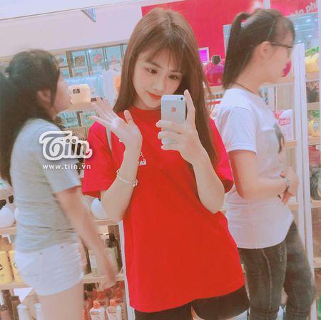 Co gai 'bup be' trong top 100 Miss Teen: So huu 25 huan chuong karatedo - Anh 5