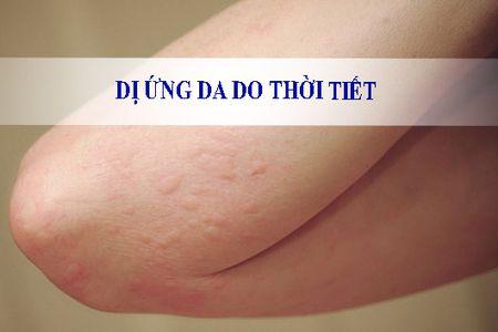 Di ung thoi tiet: noi kho khong cua rieng ai - Anh 1