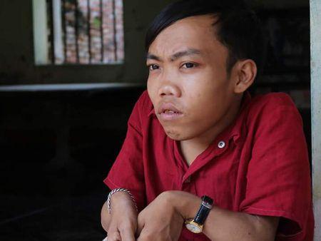 Hanh trinh muu sinh cua nguoi dan ong cao 70 cm nang 25 kg bo nha di vua 15 tuoi - Anh 1