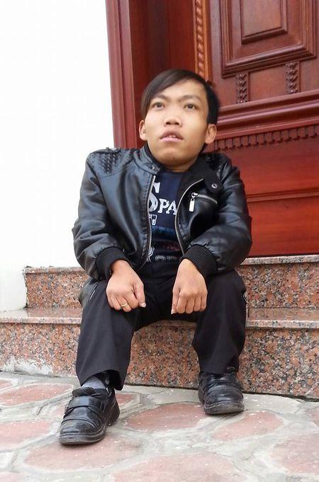 Hanh trinh muu sinh cua nguoi dan ong cao 70 cm nang 25 kg bo nha di vua 15 tuoi - Anh 2