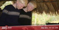 Xúc động ước mơ làm ca sỹ của anh em sinh đôi bị bạch tạng ở vùng rốn lũ Hương Khê