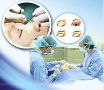 Phẫu thuật mí mắt - Coi chừng 'thảm họa'