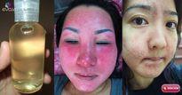 Sử dụng dầu dừa không đúng cách bạn sẽ gây nên những hậu quả không lường cho làn da