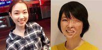 Hành trình một năm tái tạo gương mặt cho nữ sinh bị tạt axit ở Sài Gòn