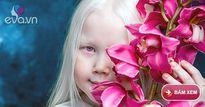 """Cô bé bạch tạng với mái tóc trắng mượt được gọi là """"Bạch Tuyết"""" của Siberi"""