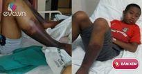 Học sinh tiểu học bị nhân viên nhà trường đánh đến hoại tử cơ thể rồi tử vong