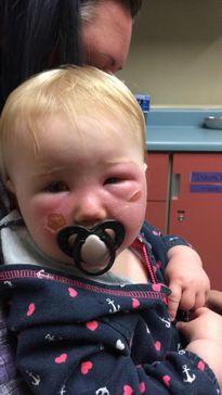Bỏng kem chống nắng, bé gái 14 tháng tuổi loang lổ mặt như bị tạt axit