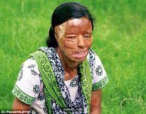 Kỳ tích của cô gái bị tạt axit mù 2 mắt chỉ vì cự tuyệt lời cầu hôn của bạn trai
