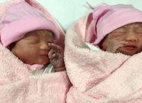 Sản phụ sinh 15 con: 'Tôi mừng vì hai bé khỏe mạnh'