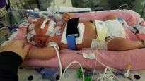 Bé sơ sinh qua đời vì viêm màng não sau nụ hôn của người lạ