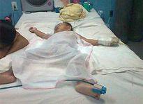 Uống nhầm dầu hỏa, trẻ 17 tháng tuổi bị viêm phổi nặng