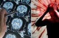 10 thói quen hại não và khiến trí nhớ 'xuống dốc không phanh'