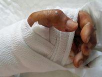 Máy xén giấy cắt lìa bàn tay trái thanh niên 20 tuổi