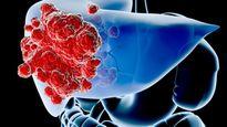 Nguyên nhân gây ung thư gan và cách phòng tránh