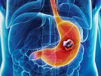Tác dụng phụ của điều trị ung thư dạ dày