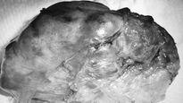 Phẫu thuật thành công khối u hiểm trong tủy sống bệnh nhân 61 tuổi