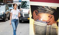 Selena Gomez khoe vết sẹo dài ở bụng sau phẫu thuật ghép thận