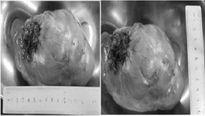 Đau ngực, khó thở vì khối u lớn chèn 1/3 phổi