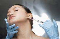Phẫu thuật căng da mặt và những biến chứng có thể xảy ra