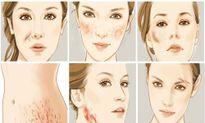 Sẹo phẫu thuật: Chăm sóc, điều trị đúng cách để không ân hận