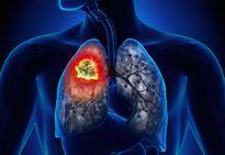 Cách phát hiện sớm bệnh ung thư phổi