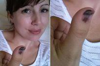 Ra tiệm nail làm móng, cô gái trẻ bàng hoàng phát hiện mình bị ung thư