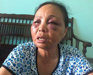 Người phụ nữ bị đánh bầm dập vì nghi bắt cóc trẻ con: 'Mong cơ quan chức năng minh oan cho tôi!'