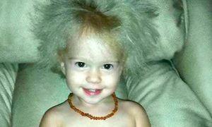 Cô bé mắc chứng bệnh hiếm gặp giống hệt thiên tài Einstein